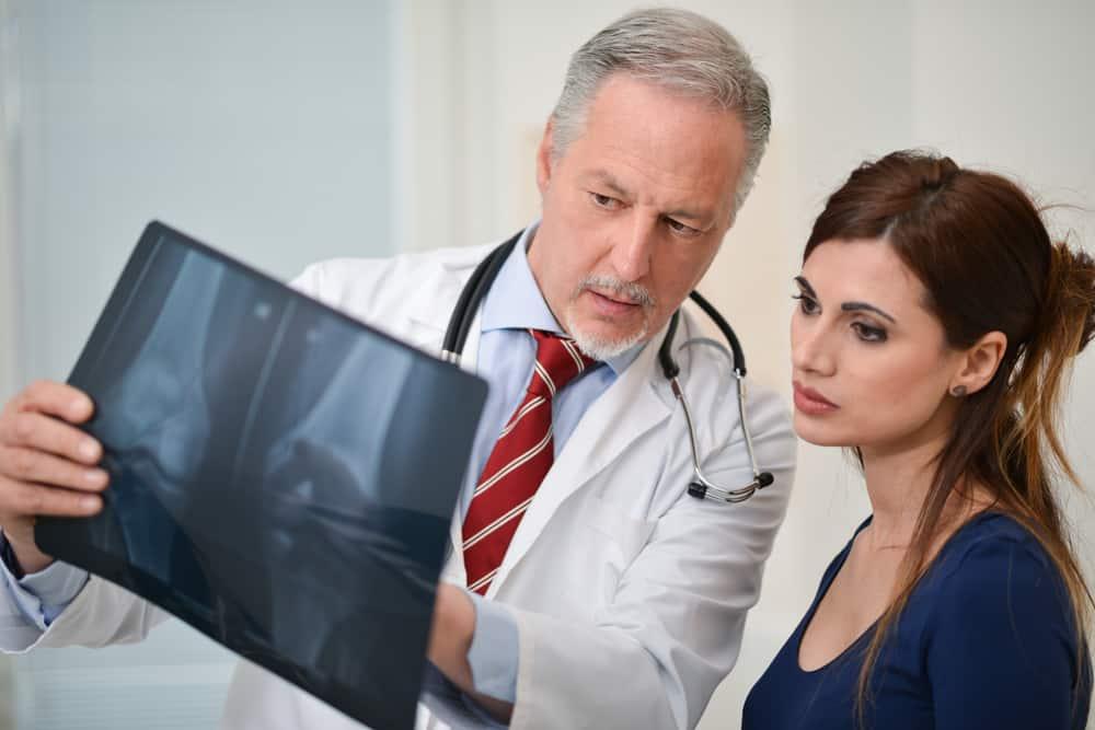 Combate la osteoporosis con conocimientos, esto es lo que necesitas saber